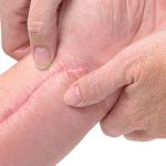 Tratamiento de queloides y cicatrices hipertróficas con láser de neodimio: Yag