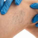 Tratamiento de arañas vasculares en las piernas con láser de KTP