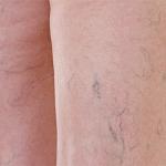 Tratamiento de varices finas y arañas vasculares profundas de las piernas con láser de neodimio
