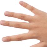 Tratamiento de los queloides con láser de neodimio de pulso corto